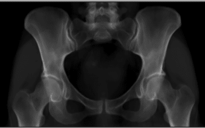 BoneMRI for the hip, pelvis and si-joint CE marked