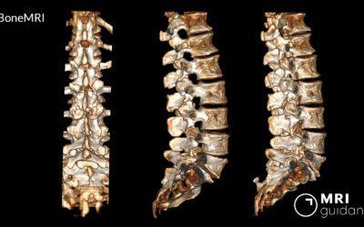 Radiation-free surgical planning with BoneMRI