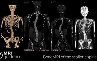 Prestigious ERC grant for scoliosis research with BoneMRI