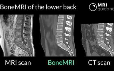 BoneMRI now available for lower back